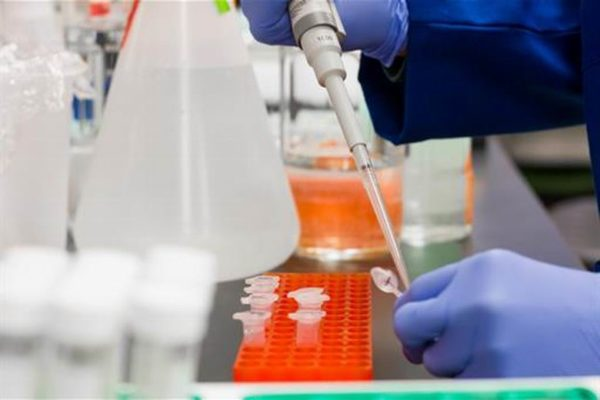 test covid19 coronavirus pcr laboratorio analisis pruebas españa